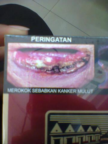 merokok dapat menyebabkan kanker mulut