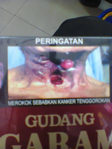 merokok sebabkan kanker tenggorokan